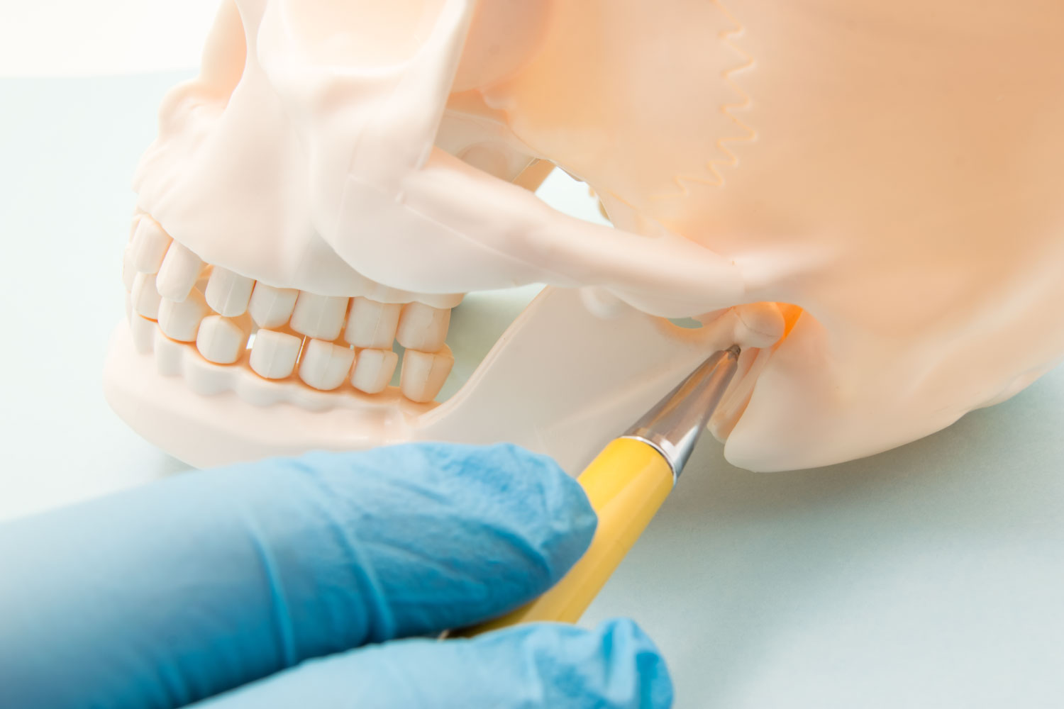 Dentist pointing at the TMJ on a fake skull to indicate TMJ dysfunction or TMD